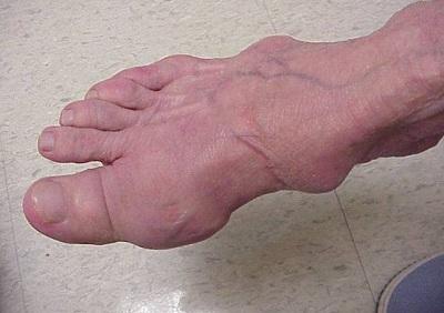 Tìm hiểu về nguyên nhân, triệu chứng gây bệnh gout, trieu chung nhan biet benh gout