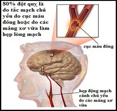 Nguyên nhân, triệu chứng, cách phòng bệnh xơ vữa động mạch, nguyen nhan, trieu chung, cach phong benh xo vua dong mach