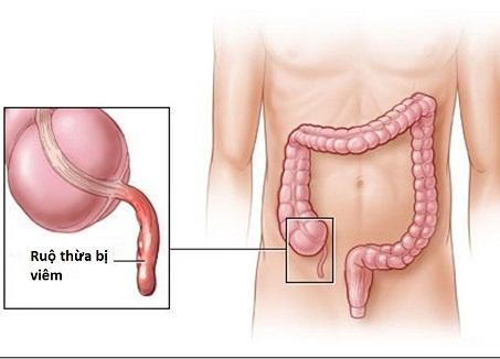 Kết quả hình ảnh cho viêm ruột thừa cấp