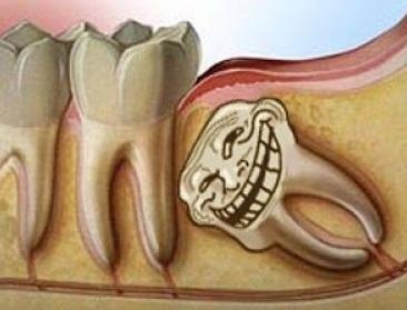 Tai biến mọc răng khôn và cách điều trị, tai bien khi moc rang khon va cach dieu tri