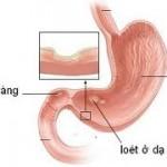 Nguyên nhân, triệu chứng loét dạ dày tá tràng