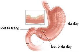 Nguyên nhân, triệu chứng loét dạ dày tá tràng, nguyen nhan, trieu chung loet da day ta trang