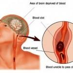 Nguyên nhân, triệu chứng bệnh xuất huyết não