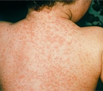 Triệu chứng bệnh sởi, trieu chung benh soi