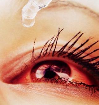 Nguyên nhân, triệu chứng bệnh đau mắt đỏ, nguyen nhan, trieu chung benh dau mat do