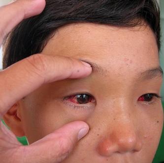 Cách điều trị bệnh xuất huyết dưới kết mạc, cach dieu tri benh xuat huyet duoi ket mac