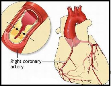 Nguyên nhân, triệu chứng, cách phòng bệnh viêm cơ tim, nguyen nhan, trieu chung, cach phong benh viem co tim