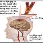 Nguyên nhân, triệu chứng, cách phòng bệnh xơ vữa động mạch