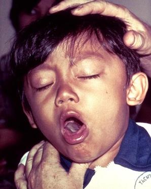 Nguyên nhân, triệu chứng bệnh ho gà ở trẻ, nguyen nhan gay benh ho ga