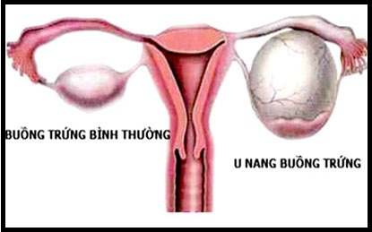 Nguyên nhân, triệu chứng bệnh u nang buồng trứng, nguyen nhan, trieu chung benh u nang buong trung