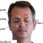 Nguyên nhân triệu chứng bệnh viêm xoang, Nguyen nhan trieu chung benh viem xoang