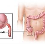 Bệnh viêm ruột thừa-nguyên nhân, triệu chứng, hướng điều trị